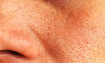 Pores in Skin